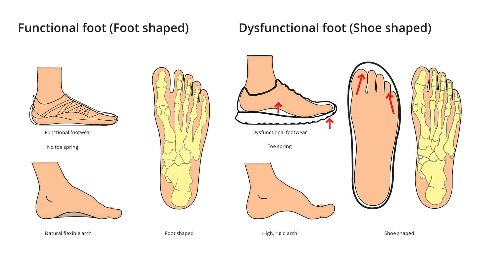 Shoe shape versus foot shape in functional footwear