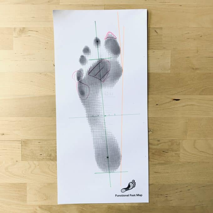 Sample Functional Footmap Amsterdam
